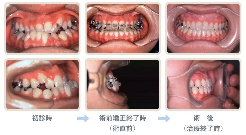 大阪歯科大学附属病院大阪歯科大学附属病院顎変形症外来